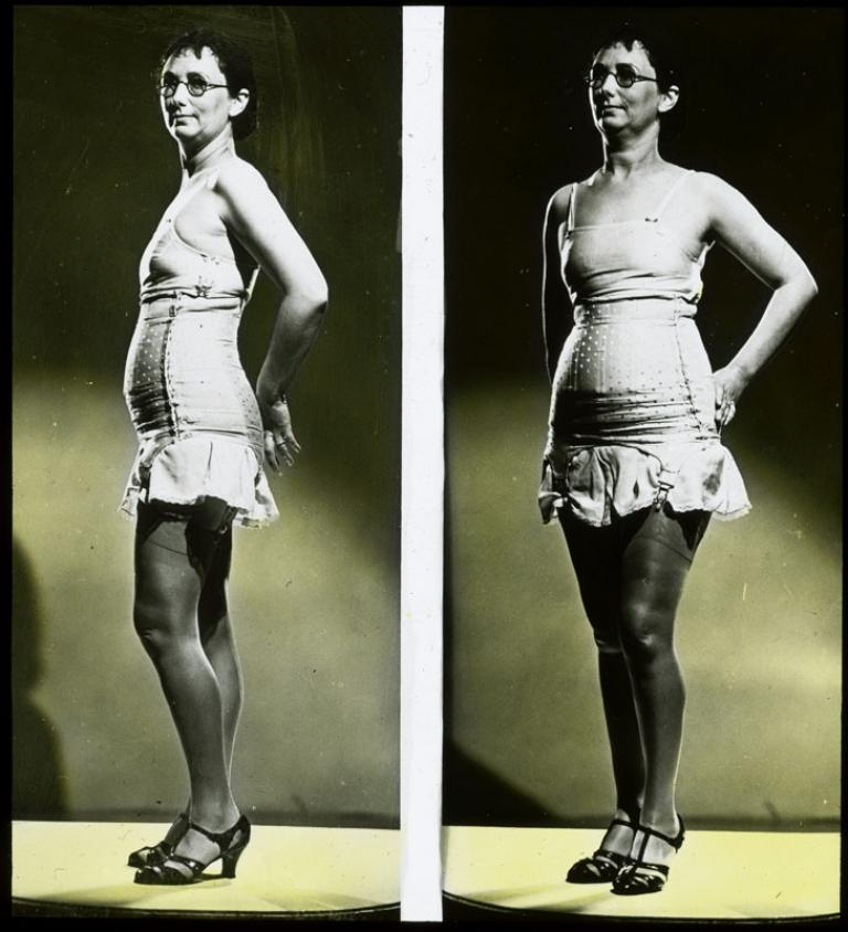 A side-by-side comparison of a woman wearing underwear, seen from two different angles. The slide is hand-coloured.